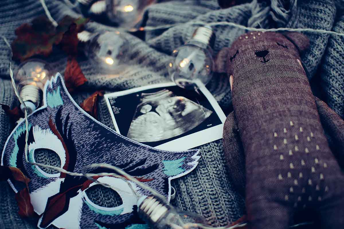 ultrasound photo surrounded by string lights.